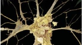 The Brain's Own Marijuana