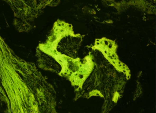 New Stem Cell Finding Bodes Well for Future Medical Use in Humans