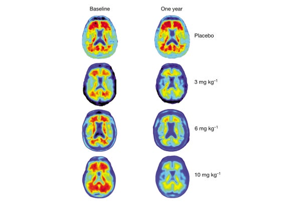 Alzheimer's Drug Shows Promise in Small Trial