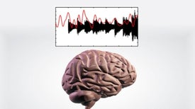 How Does Your Brain Follow the Music?