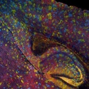 Neural Pointillism: Lighting Up the Brain in Psychedelic Relief [Slide Show]