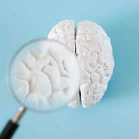 To Tell the Truth: Brain Scans Are Not Ready for the Courtroom