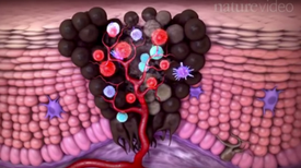 Future of Medicine: How Doctors Boost the Immune System to Fight Cancer [Video]