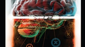 Damage to a Protective Shield around the Brain May Lead to Alzheimer's and Other Diseases
