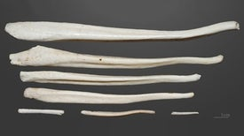 Why Humans Have No Penis Bone