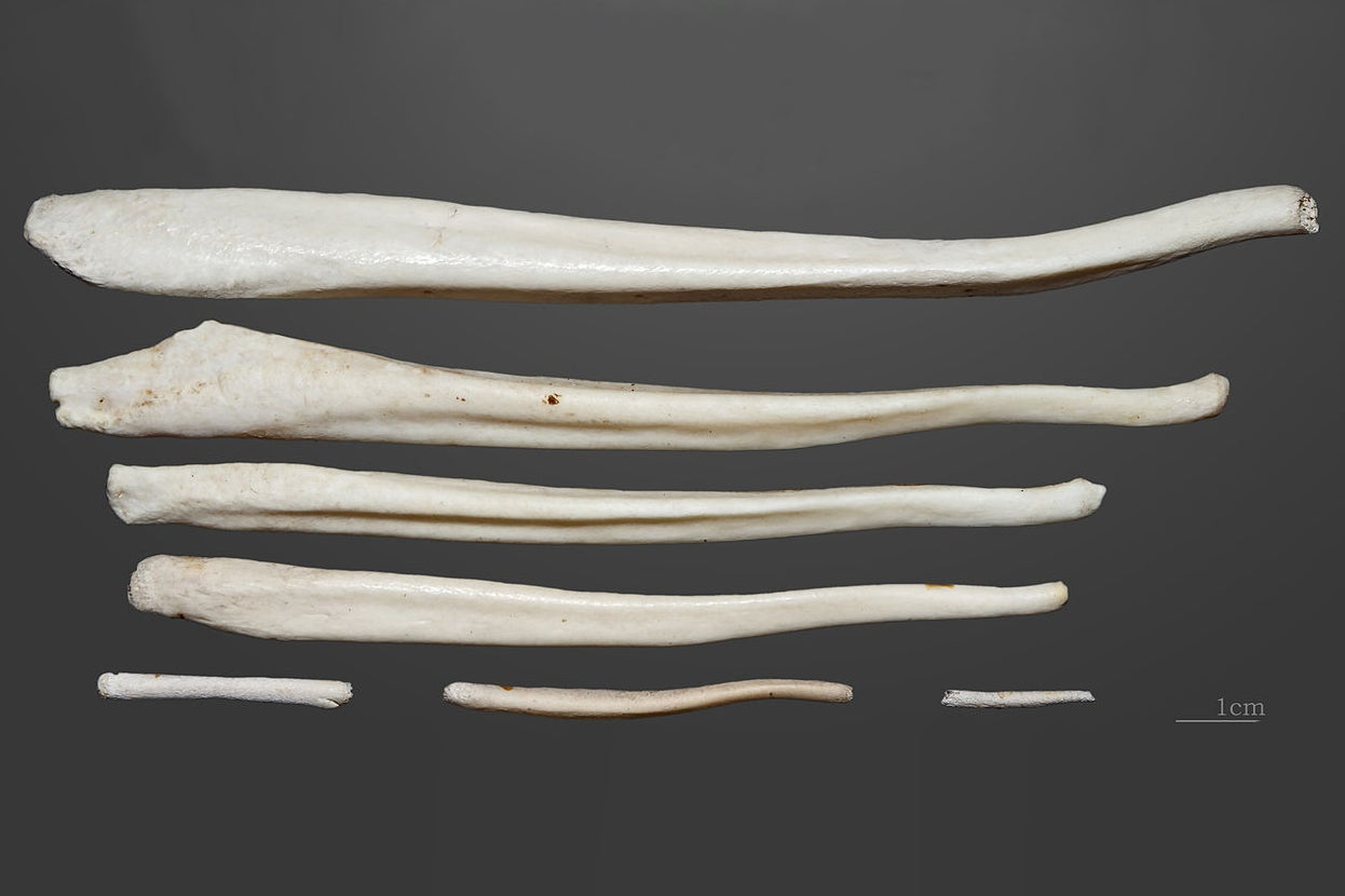 Why people do not have bones in the penis