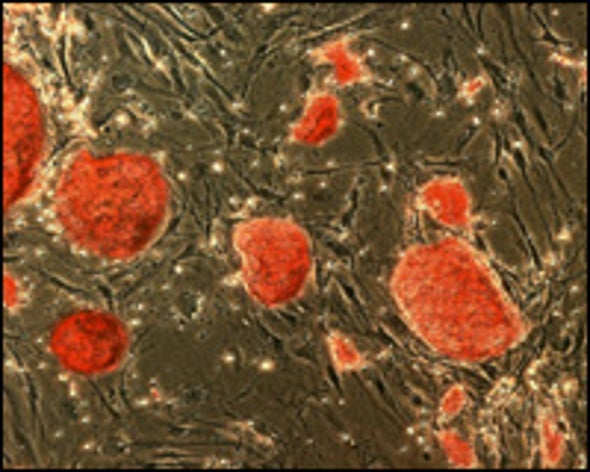 Stem Cells from Skin Cells