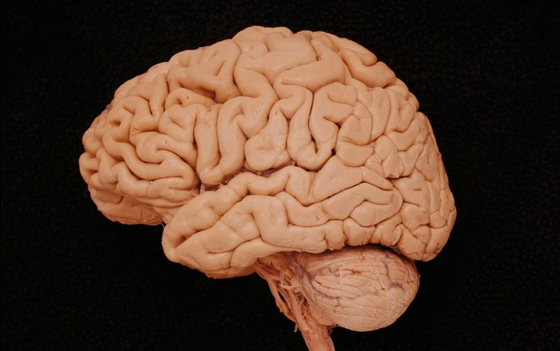 "U.S. Cracking Down on ""Brain Training"" Games"