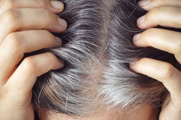 Gray Hair Can Return to Its Original Color--and Stress Is Involved, of Course