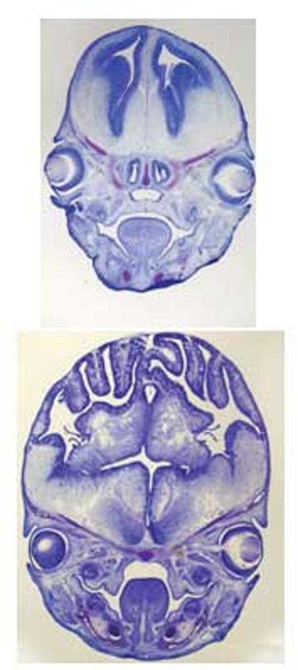 Tweaking Single Gene Makes Mice Brainier