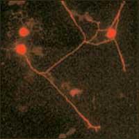 Rat Study Shows That Exercise Promotes Neuron Growth
