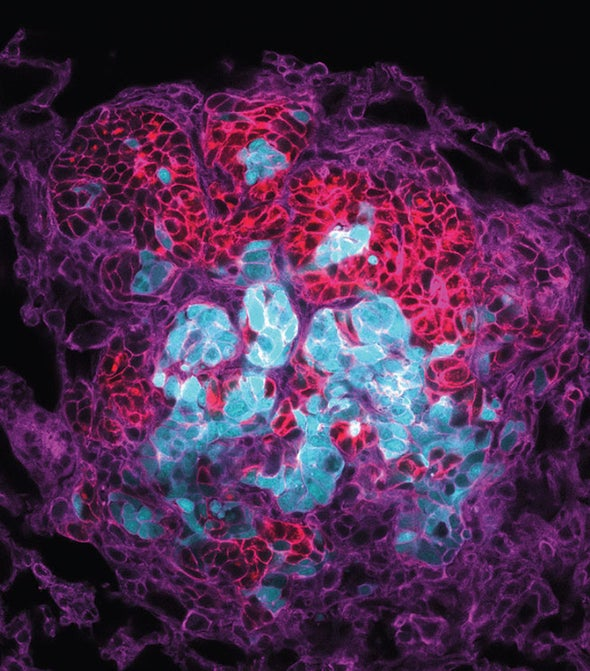 Cancerous Coconspirators: Tumor Cells That Travel Together Spread Cancer