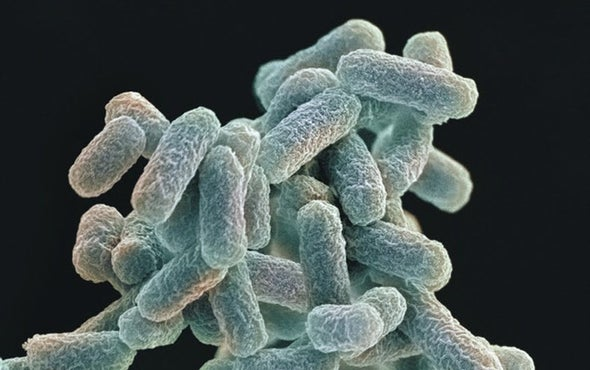 Escherichia coli  Wikipedia