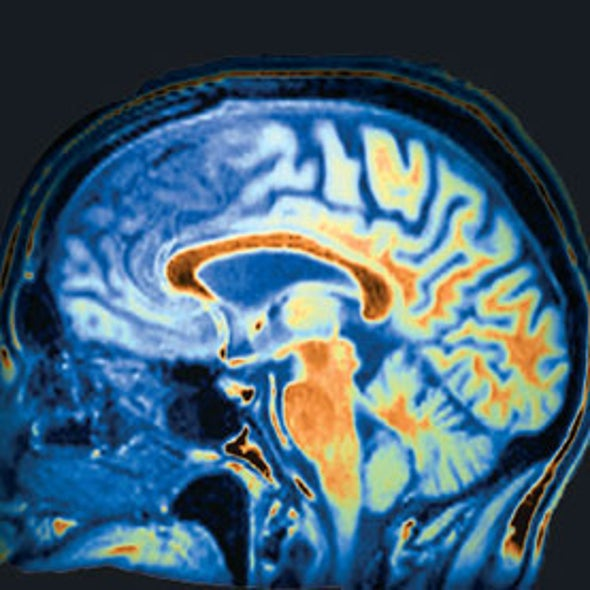 Can Brain Scans Diagnose Mental Illness?