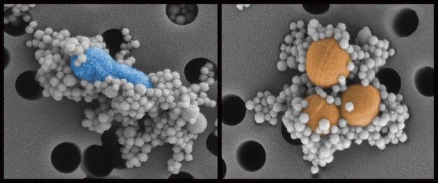Artificial Spleen Cleans Ebola from Blood