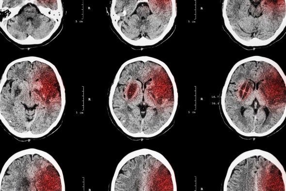 New Method for Tackling Stroke Restrains an Overactive Immune System