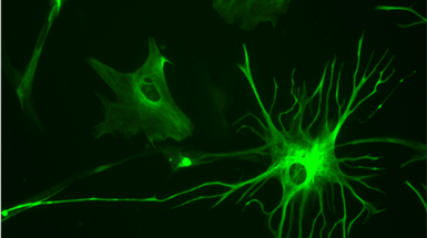 "Brain's ""Helper"" Cells Turn Toxic in Injury and Disease"