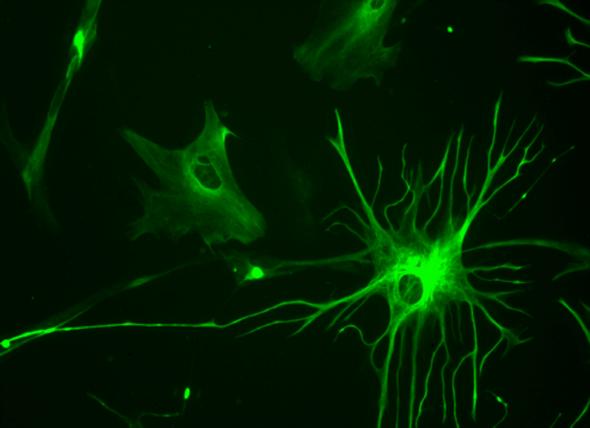 """Brain's """"Helper"""" Cells Turn Toxic in Injury and Disease"""
