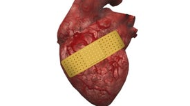 Gene Therapy Shows Promise for Treating Heart Attack Victims