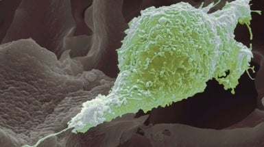 Cancer Cells Can't Proliferate and Invade at the Same Time