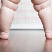 A Genetic Risk Score Tries to Predict Whether A Child Will Become Obese