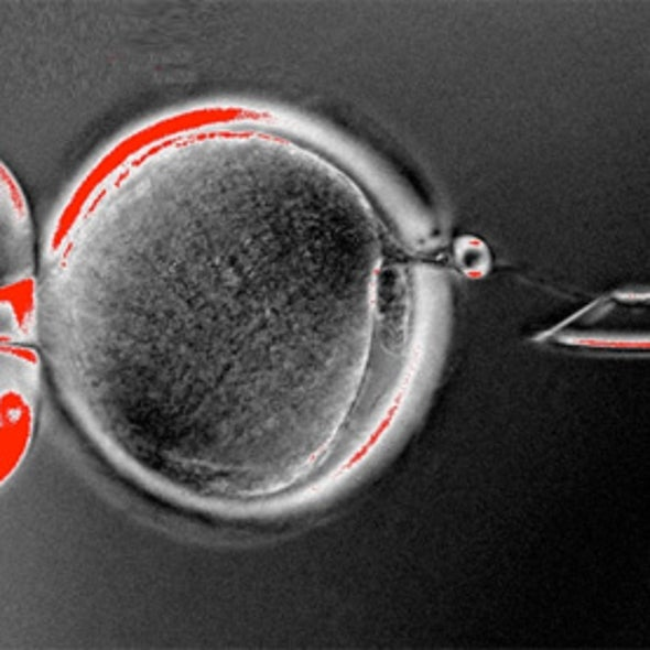 Patient-Specific Human Embryonic Stem Cells Created by Cloning