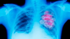 Lung Cancer Screen Could Be Easy Pee-sy