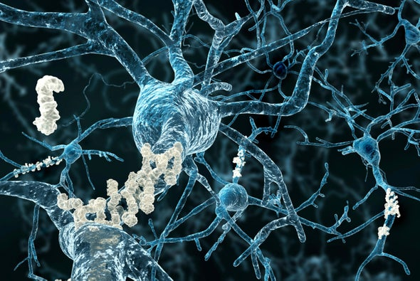 New Clues Show Out-of-Control Synapse Pruning May Underlie Alzheimer's
