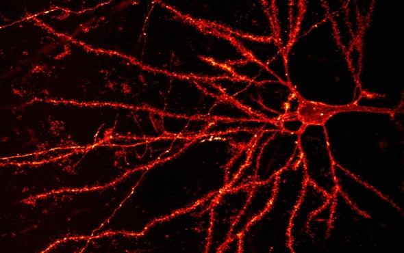 What Makes Human Brain Cells Unique?