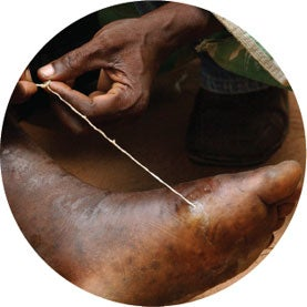 The World's Last Worm: A Dreaded Disease Nears Eradication