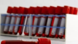 DNA on the Loose: Next-Gen Blood Tests Tap Free-Floating Genetic Material