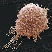AI-Based App Could Screen for Cervical Cancer