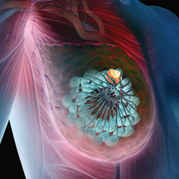 Beyond Mammograms: Research Aims to Improve Breast Cancer Screening