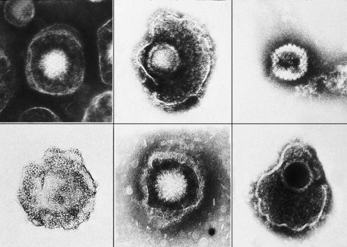 Igg test results interpretation herpes dating