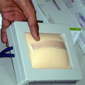 surgery,adhesive,suture