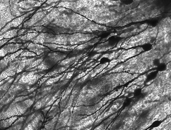 Injectable Brain Implant Spies on Individual Neurons