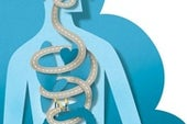 Does Weight-Loss Surgery Rewire Gut–Brain Connections?
