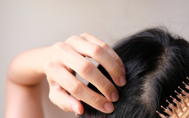 Is Iron Deficiency Causing Your Hair Loss?