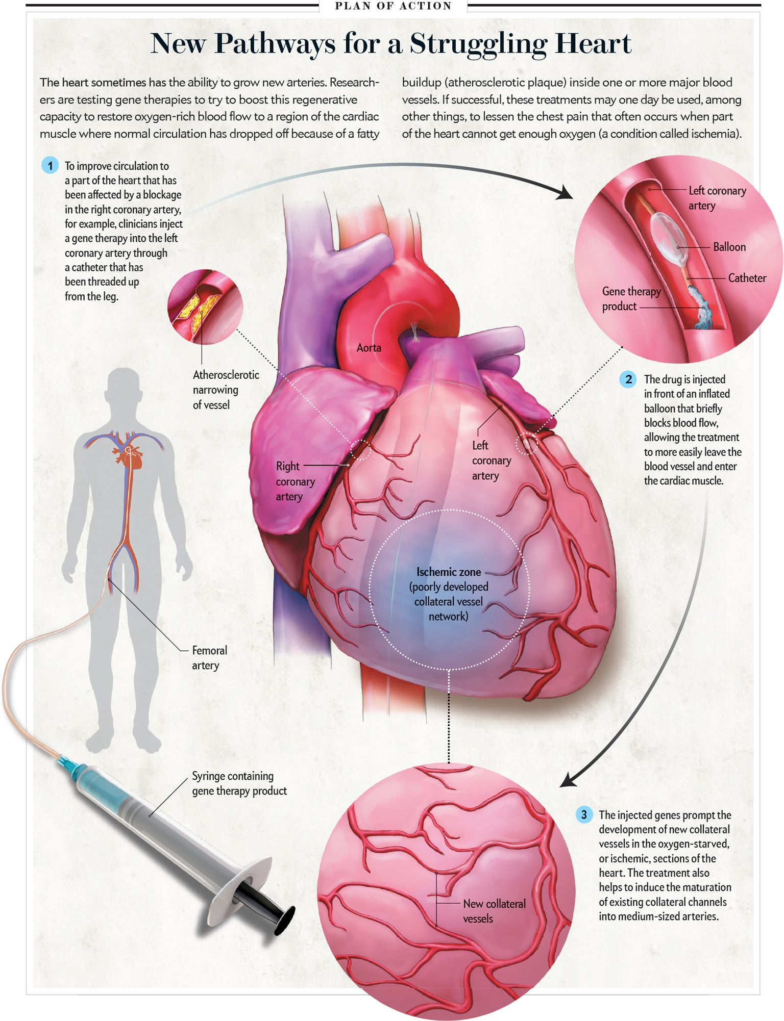 Could gene therapy cure heart disease scientific american sciox Image collections