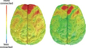Depression Linked with Hyperconnected Brain Areas