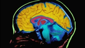 A Brain Deprived of Memory