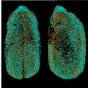 New Microscope Enables Real-Time 3-D Movies of Developing Embryos [Slide Show]