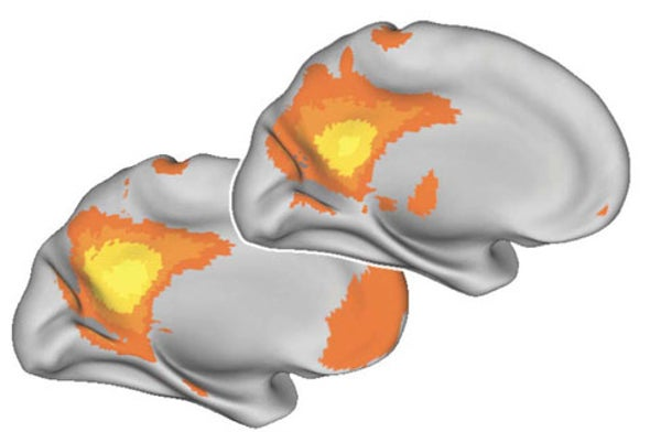 The Aging Brain: Is It Less Connected?