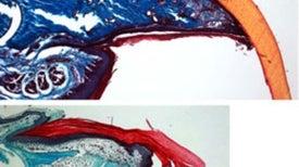 How Nails Regenerate Lost Fingertips