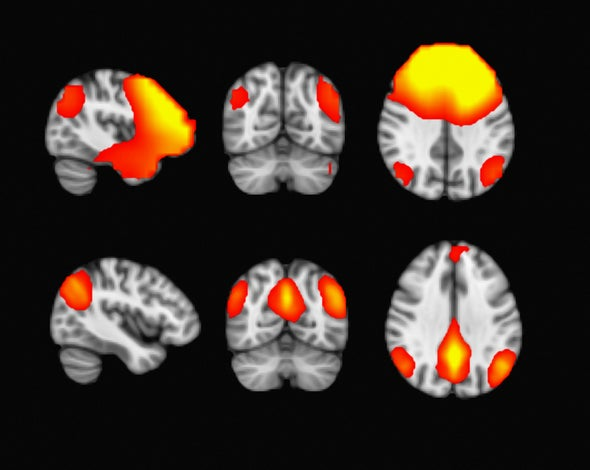 Constant Shifts between Mental States Mark a Signature of Consciousness
