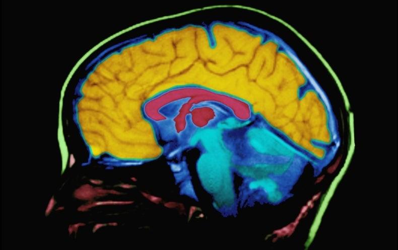 Human Brain Mapped in Unprecedented Detail