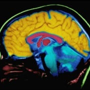 Human Brain Mapped in Unprecedented Detail