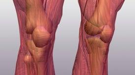 Knee Sounds Give Docs a Leg Up