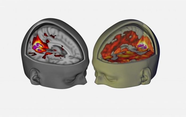 """LSD May Chip Away at the Brain's """"Sense of Self"""" Network"""