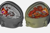 LSD May Chip Away at the Brain's